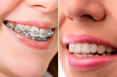 Est-ce que l'orthodontie invisible fonctionne vraiment