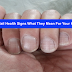 10 Nail Health Signs What Your Fingernails Tell About Your Health Condition