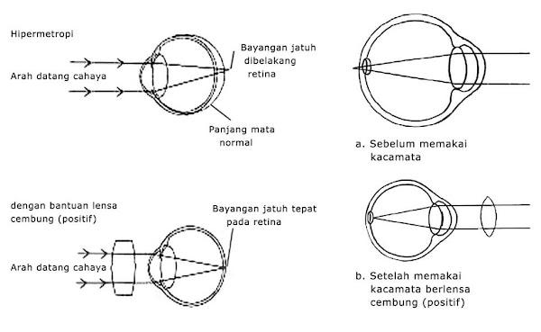 hipermetropi mata