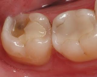 Cách khắc phục răng hàm bị vỡ nhanh và tiết kiệm ?