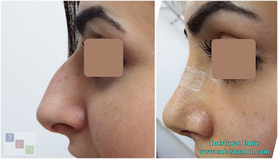 Female Nose Aesthetic Surgery - Nose Jobs For Women - Nose Reshaping for Women - Best Rhinoplasty For Women Istanbul - Female Rhinoplasty Istanbul - Nose Job Surgery for Women - Women's Rhinoplasty - Nose Aesthetic Surgery For Women - Female Rhinoplasty Surgery in Istanbul - Female Rhinoplasty Surgery in Turkey