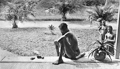 Un hombre contemplando la mano y el pie amputados de su hija de 5 años (1904)