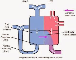 fallotsche tetralogie pathophysiologie