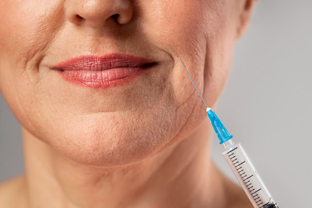 What are actually Botox Injections as well as Are actually They For You