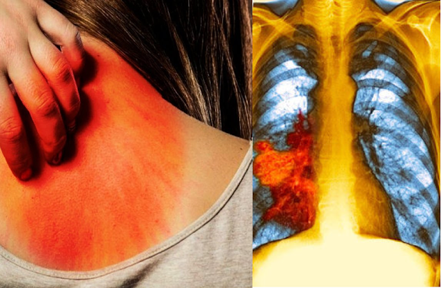 Health Symptoms: Early Warning Signs of Lung Disease That Women Should Never Ignore