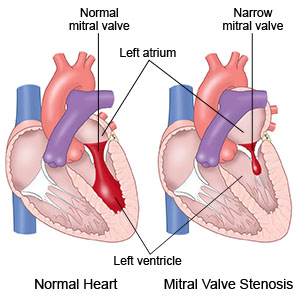 Prepare for Medical Exams : Mitral Stenosis - Case Study