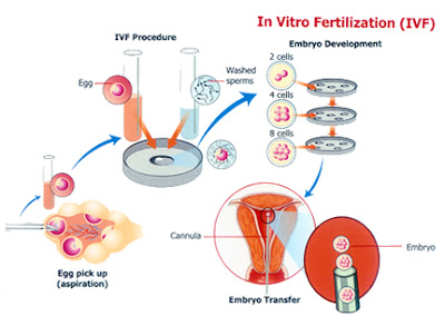 IVF Treatments in Madurai