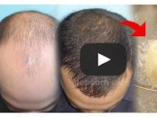 Apakah Anda Mengalami Masalah Rambut Rontok? Sayuran Ini Dapat Membantu Anda!