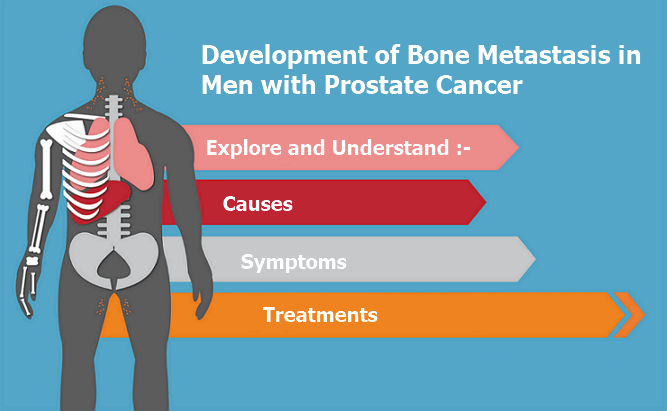 metastatic bone cancer the effect and management The management for bone metastases depends largely on the degree of bone damage once the metastases are diagnosed an initial step in managing effects of atrasentan on disease progression and biological markers in men with metastatic hormone-refractory prostate cancer: phase 3 study.