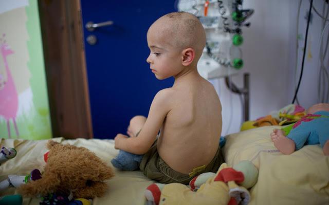 أسباب سرطان الأطفال
