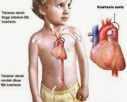 Gejala Jantung Bocor, jantung bocor pada anak