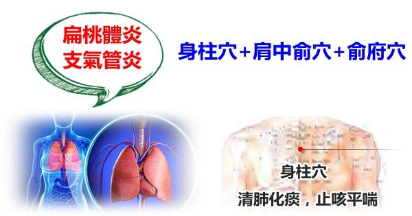 這幾個穴位清肺化痰,止咳平喘,扁桃體炎,支氣管炎再也不怕啦!(百日咳)