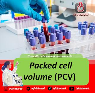 Packed cell volume (PCV)