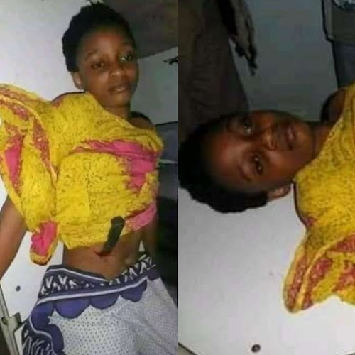 18-Year Old Girl Stabs Herself With A Knive After She Caught Her Cheating Boyfriend Red-handed