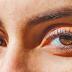 मानसून में आँखों के इन्फेक्शन से है परेशान तो करें ये इलाज
