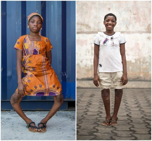 Incredible Before and After Photos Of Teen After Undergoing Free Surgery to Correct Her Extreme Bow-Leggedness