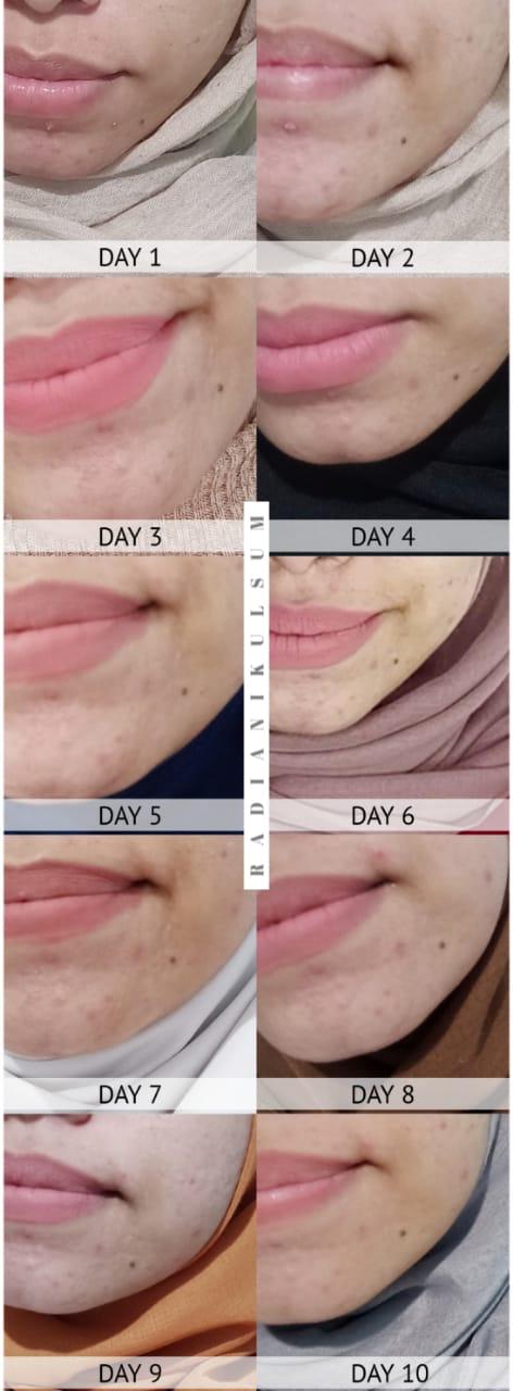 10 Days Progress