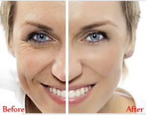 Anti Aging Solution