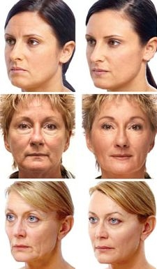 Best Facial Exercise Program
