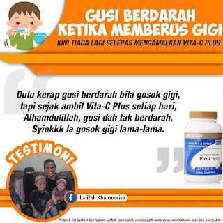 Vitamin C Untuk Gigi Gusi