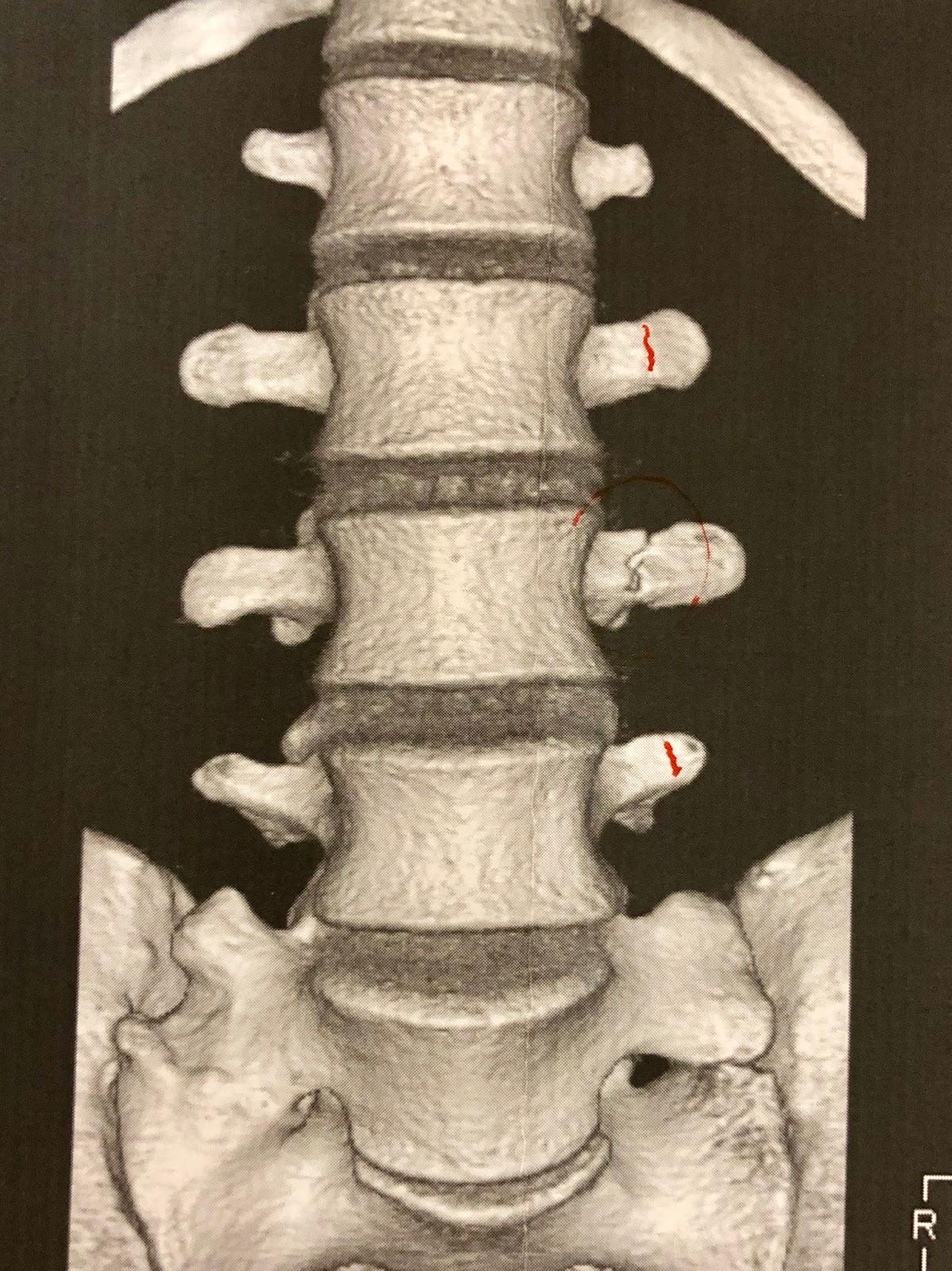 横 突起 腰椎 ランドマークとしての棘突起~棘突起と対応する骨の触診~|CLINICIANS