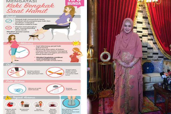 Kaki Siti Nurhalizah Bengkak Saat Hamil, Jika Anda Mengalami Begini Tipsnya