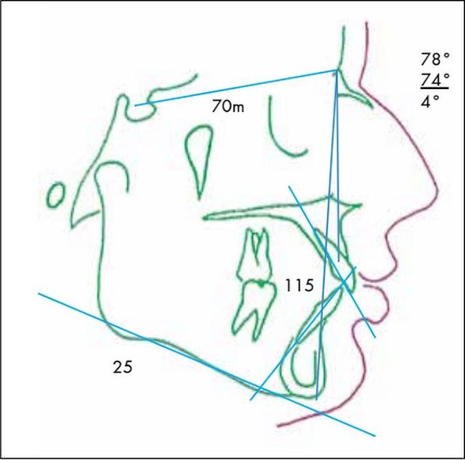 CASO CLÍNICO: Extracción asimétrica en el tratamiento de Ortodoncia