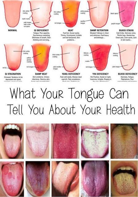 All You Have To Know What Your Tongue Says About Your Health
