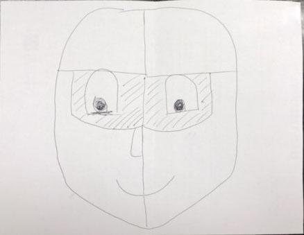 Các vùng cần lăn kim trên khuôn mặt, trừ hai hốc mắt