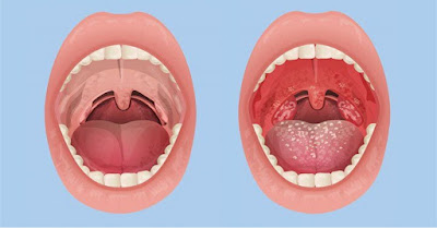 Hình ảnh mô phỏng bệnh viêm họng