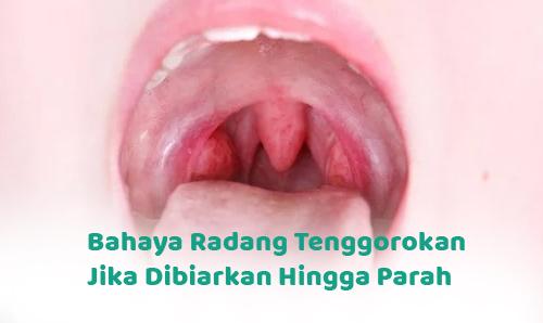 Bahaya Radang Tenggorokan Jika Dibiarkan Hingga Parah