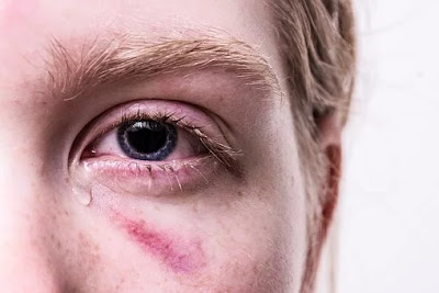 First Aid for Eye Injury