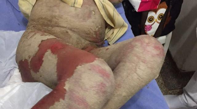 Paciente com doença rara agoniza dentro de ambulância em Porto Velho há vários dias sem atendimento