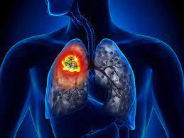 Una nueva droga oral que reduce un 57% el riesgo un tipo de cáncer de pulmón