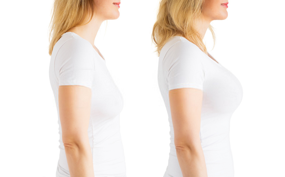 What are all the benefits of breast augmentation?