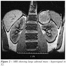 MRI-of-adrenal-gland-tumor-image-reload