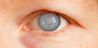 الماء الأزرق في العين