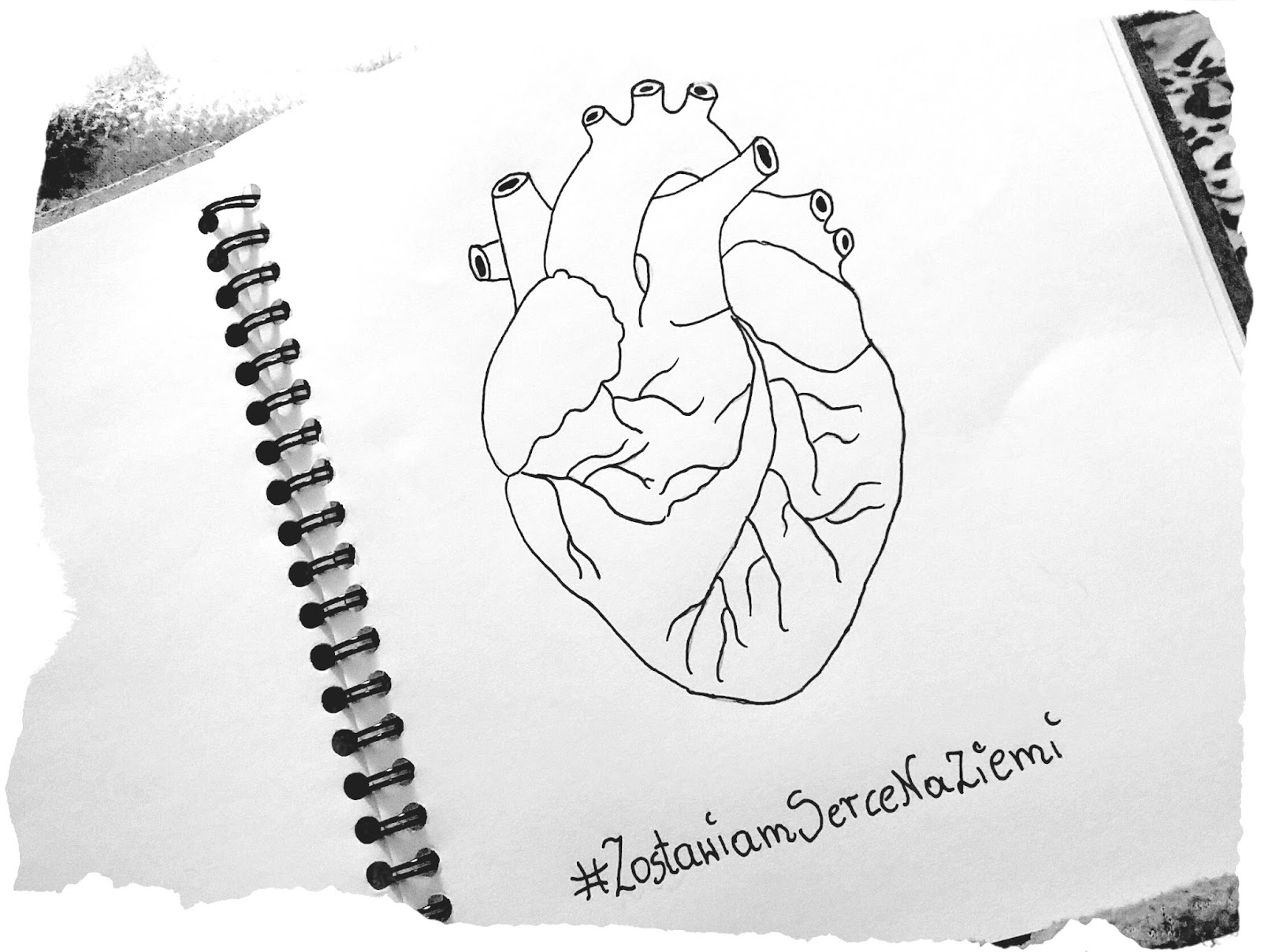oddanie organów, przeszczep serca, śmierć mózgu