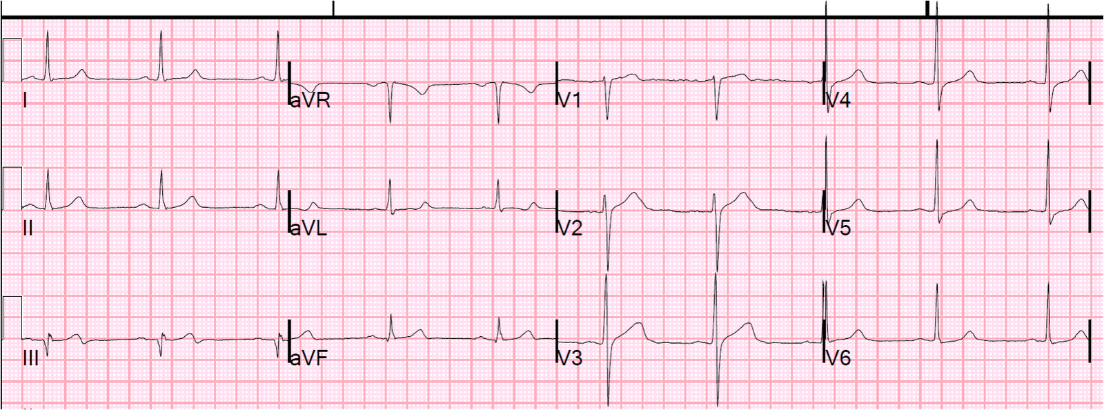 There is now a p...Q Wave