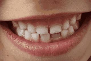 menghilangkan-karang-gigi-dengan-bahan-alami.png