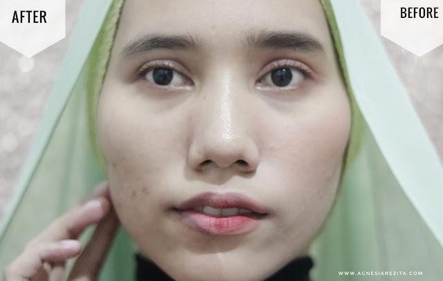 Azalea Gentle Facial Wash - Wonder Skin (Kemasan Pink)