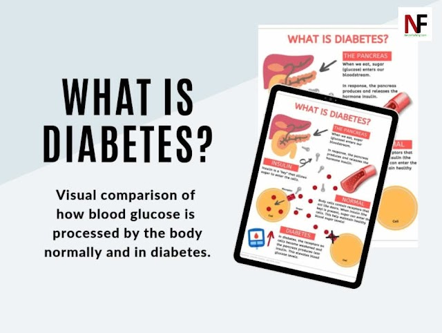 What is Diabetes, Types of Diabetes, Risk factors and What causes it?