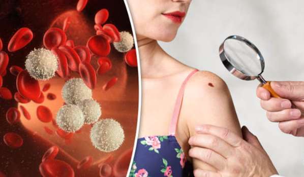 10 #Early #Warning Signs #of Cancer #Most #People Ignore #Health