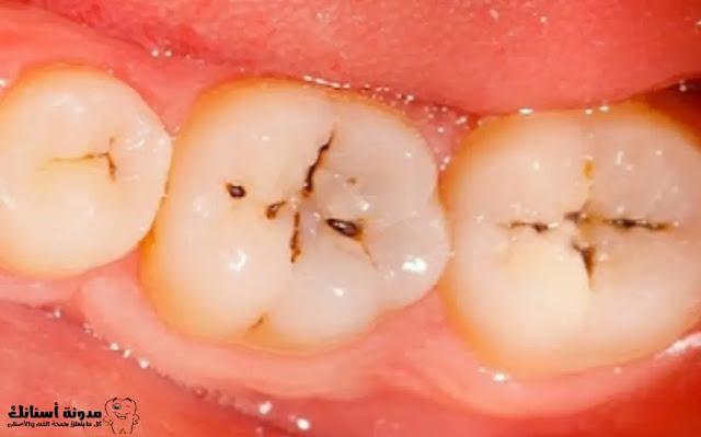 كيف أزيل تسوس الأسنان،ما أسبابه وطرق الوقاية منه،وعلاجه.