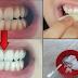 Albește-ți dinții ACASĂ în mai puțin de 2 minute! Folosește doar aceste DOUĂ INGREDIENTE…