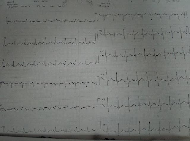 Ventricular Free wall Rupture ECG
