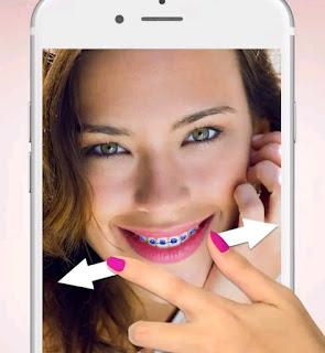 Kawat gigi kamera