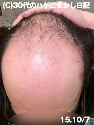 2015年10月7日育毛の様子