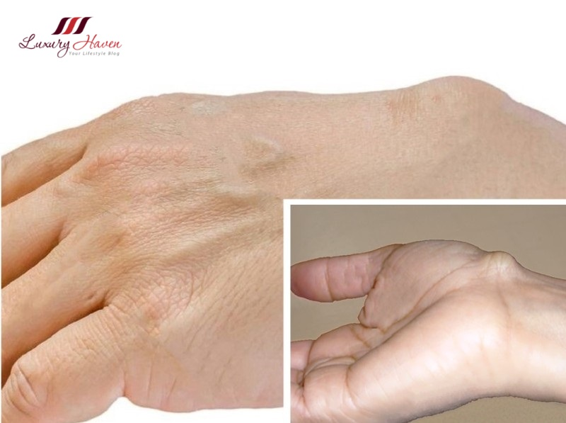 ganglion cyst treatments aspiration surgery options