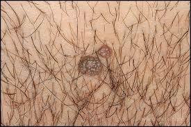 Verrugas genitales no malignas